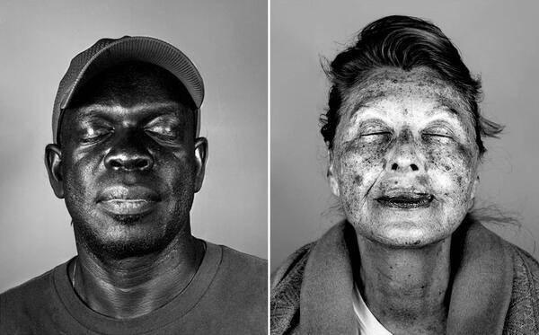 Белезите, с които слънцето завинаги маркира лицето
