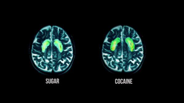 Кое е по-лошо за мозъка: Захар или кокаин?