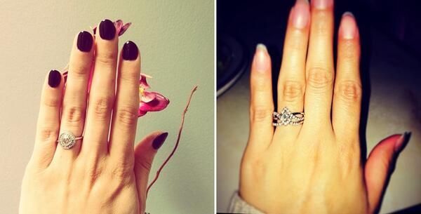 Пластична операция заради годежен пръстен?!