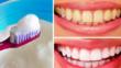9-те най-добри начина за естествено избелване на зъбите