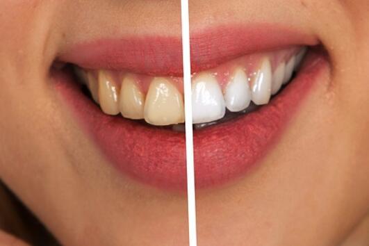 8 грешки, които допускаме в грижата за зъбите