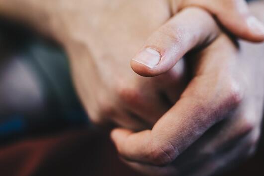 Защо никога не бива да откъсвате стърчаща кожичка от нокътя?