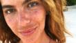 11 начина да премахнете тъмните петна от кожата си