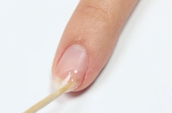 Как да залепите счупен нокът с торбичка за чай (ВИДЕО)